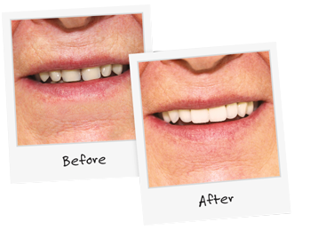 Guelph Denture Clinic Before and After