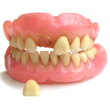 Denture Rebase, Repair, and Reline