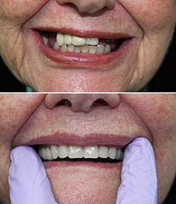Oral Health and Dentures